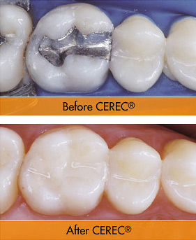 CEREC Technology